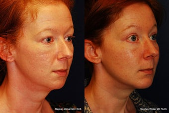 Cheek Augmentation before 1445710