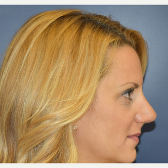35-44 year old woman treated with Septoplasty after 3131278
