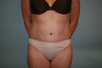 Abdominoplasty after 304429