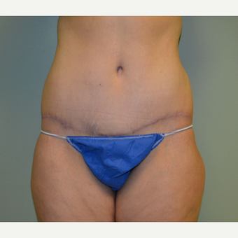 35-44 year old woman treated with Tummy Tuck after 2976229
