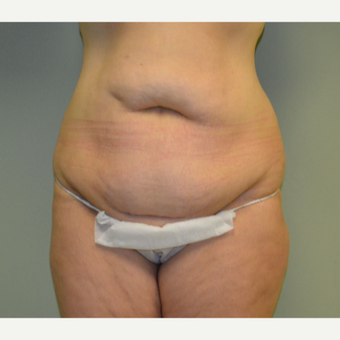 35-44 year old woman treated with Tummy Tuck before 2976229