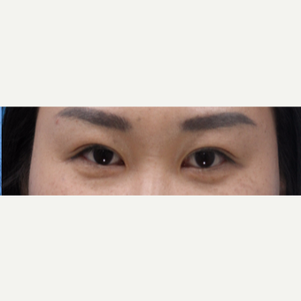 35-44 year old woman treated with Asian Eyelid Surgery after 3606251