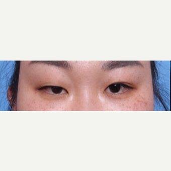 35-44 year old woman treated with Asian Eyelid Surgery before 3606251