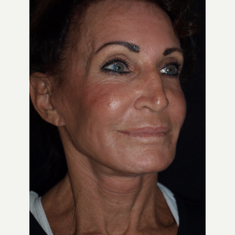 65-74 year old woman treated with Facelift after 3082363