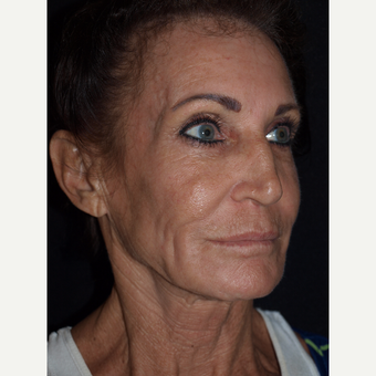 65-74 year old woman treated with Facelift before 3082363