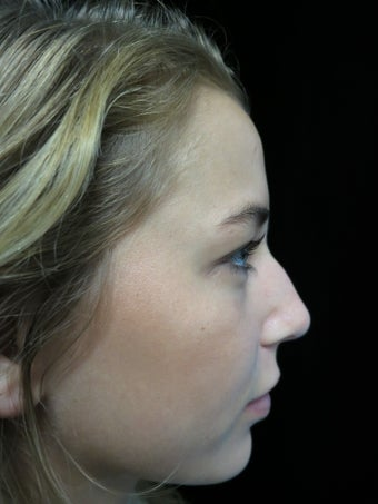 Scarless Closed Rhinoplasty before 3586198