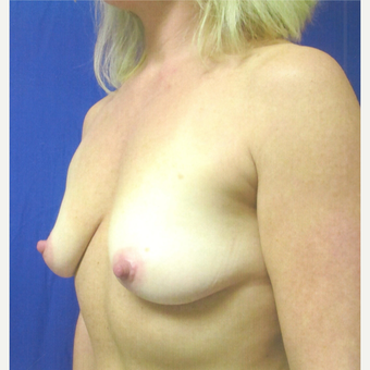 45-54 year old woman treated with Breast Augmentation before 3809860