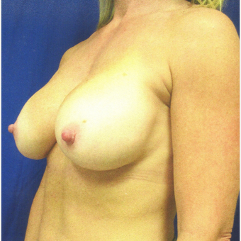 45-54 year old woman treated with Breast Augmentation after 3809860