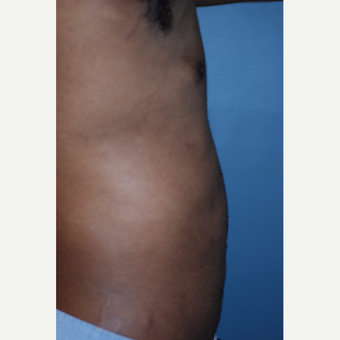 18-24 year old man treated with Liposuction after 3623654