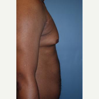 18-24 year old man treated with Liposuction before 3623654