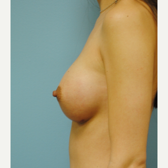 28 year old woman treated with Breast Implants, A to B cup increase, IMF incision after 3731456
