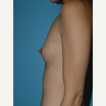 28 year old woman treated with Breast Implants, A to B cup increase, IMF incision before 3731456