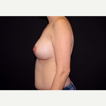 35-44 year old woman treated with Breast Implants before 3439966