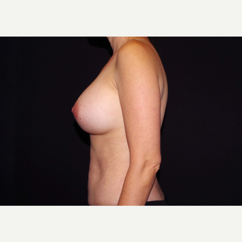 35-44 year old woman treated with Breast Implants after 3439966