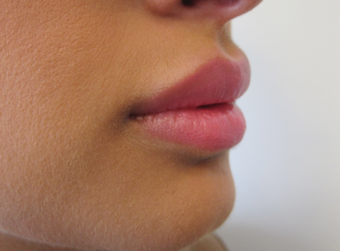 Lip Filler with Juvederm Volbella after 1059220