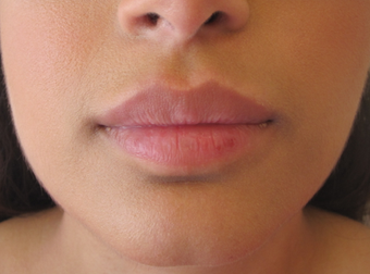 Lip Filler with Juvederm Volbella 1059220