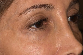 Undereye trough rejuvenation with Belotero after 1479817