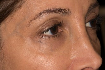Undereye trough rejuvenation with Belotero before 1479817