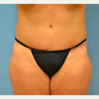 Mother of three finds success with abdominoplasty after 3731895