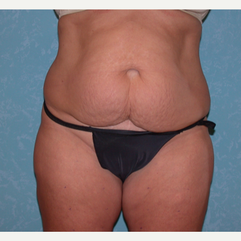 Mother of three finds success with abdominoplasty before 3731895