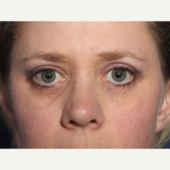 35-44 year old woman treated with Eyelid Surgery (view 1 of 2) after 3246827