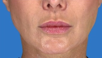 45-54 year old woman treated with Voluma after 1649949