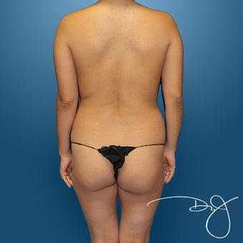 Butt Augmentation before 864869