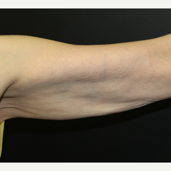 55-64 year old woman treated with ThermiTight to the upper arms after 3398540