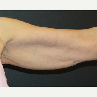 55-64 year old woman treated with ThermiTight to the upper arms before 3398540