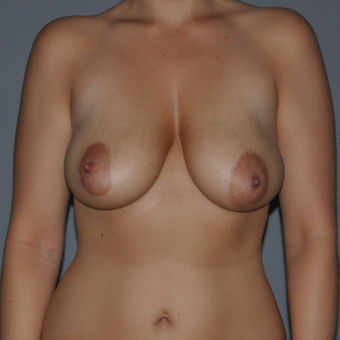35-44 year old woman treated with Breast Lift before 3412681