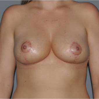 35-44 year old woman treated with Breast Lift after 3412681