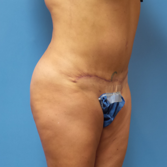 Tummy Tuck with Abdominal and Back Liposuction after 3328213