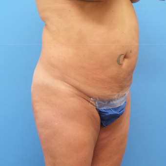 Tummy Tuck with Abdominal and Back Liposuction before 3328213
