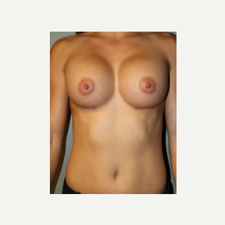 25-34 year old woman had her old implants removed and replaced with new implants. before 3764358