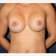 25-34 year old woman had her old implants removed and replaced with new implants. after 3764358
