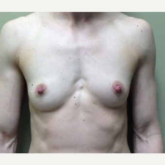 25-34 year old woman treated with Breast Augmentation before 3021842