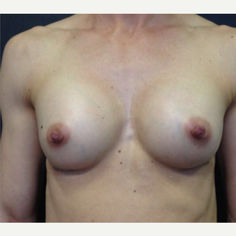 25-34 year old woman treated with Breast Augmentation after 3021842