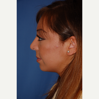 18-24 year old woman treated with Rhinoplasty after 3781962