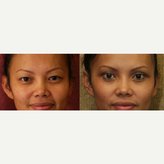 Asian Eyelid surgery before and after pictures  before 3424083