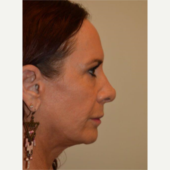 55-64 year old woman treated with Facelift after 3664429