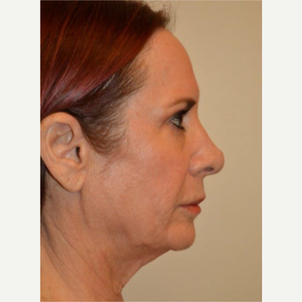 55-64 year old woman treated with Facelift before 3664429