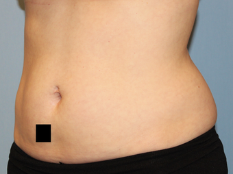 37 year old female with stubborn fat in her midsection.  Liposuction performed with 3 Liters removed. before 1403071
