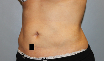 37 year old female with stubborn fat in her midsection.  Liposuction performed with 3 Liters removed. after 1403071
