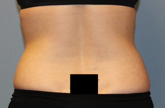 37 year old female with stubborn fat in her midsection.  Liposuction performed with 3 Liters removed. 1403071