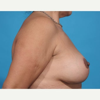 45-54 year old woman treated with Nipple Reduction Surgery after 1851608