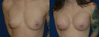 27 year old woman treated with Breast Augmentation before 2990430