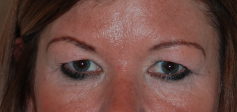 Upper and lower blepharoplasty, photographs at 9 months post op before 1479656