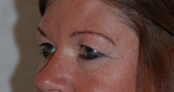 Upper and lower blepharoplasty, photographs at 9 months post op 1479656