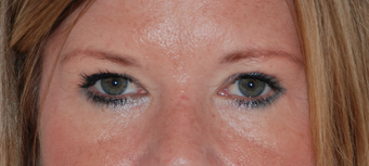 Upper and lower blepharoplasty, photographs at 9 months post op after 1479656