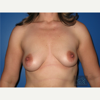 35-44 year old woman treated with Breast Lift with Implants before 3094328